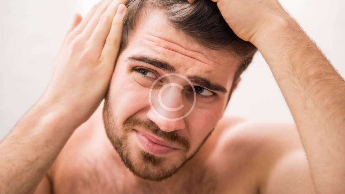 Going Bald Too Young? Top Tips From The Experts!
